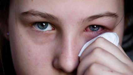 Eye problems can happen in the rain, take care like this